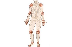Reumatoid arthritis tünetei és kezelése