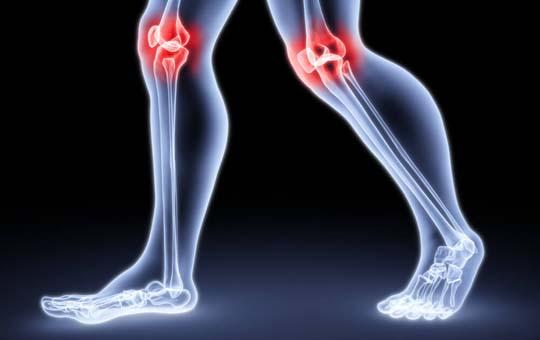 crovertebralis arthrosis c5 kezelés