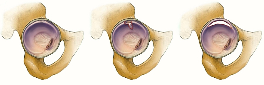 mi a csípőízület artrózisa 2 fokkal