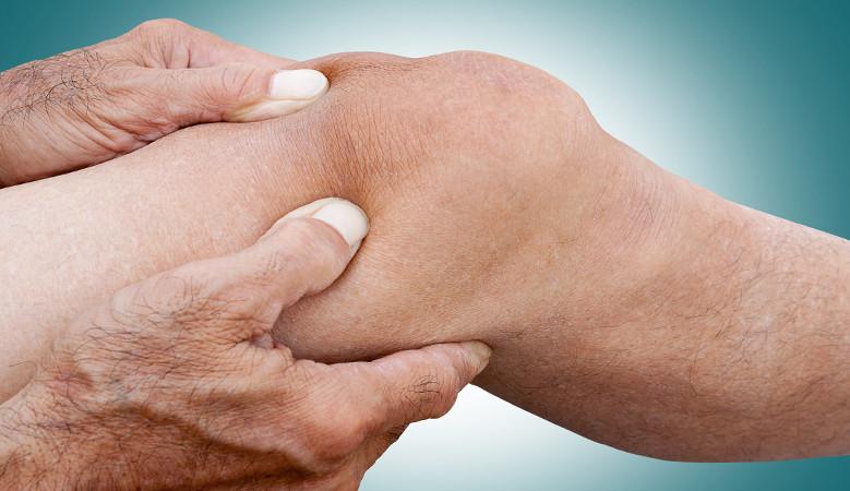 a térdízület ideggyulladásának kezelése
