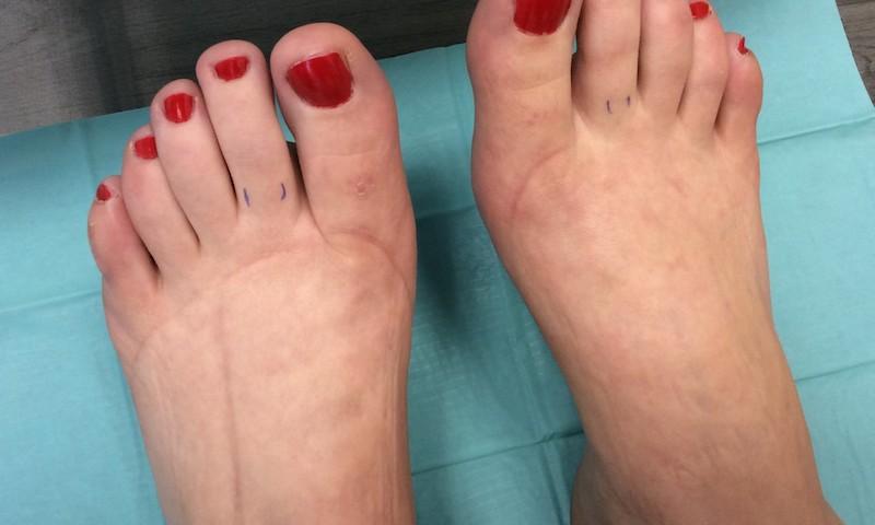 a láb együttes kezelése