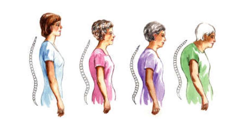 2. fokozatú csontritkulás kezelés