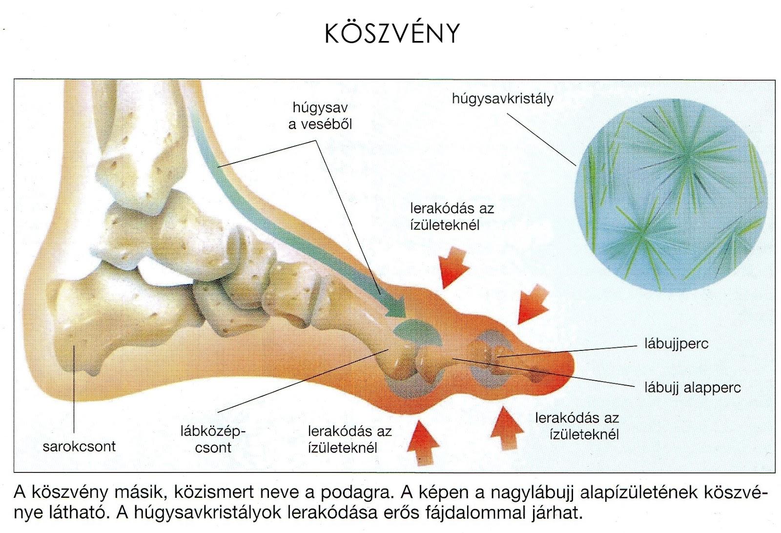 elviselhetetlen ízületi fájdalom bokagyulladás lapos lábak miatt