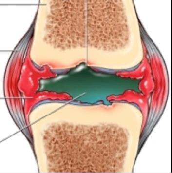 a jobb láb csípőízületének gyulladása - melyik