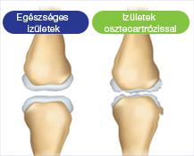 az ízületek legalább fájnak áttekintés az artrózisos zsákok kezeléséről