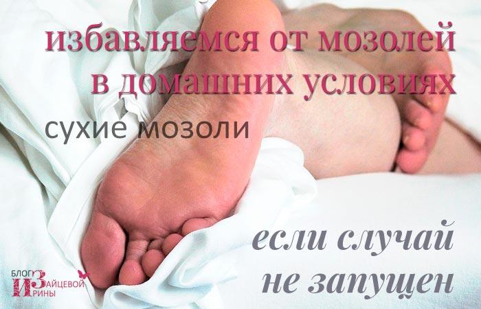 ízületi gyulladás, mint a hüvelykujj kezelése ízületi kezelés artrózis esetén