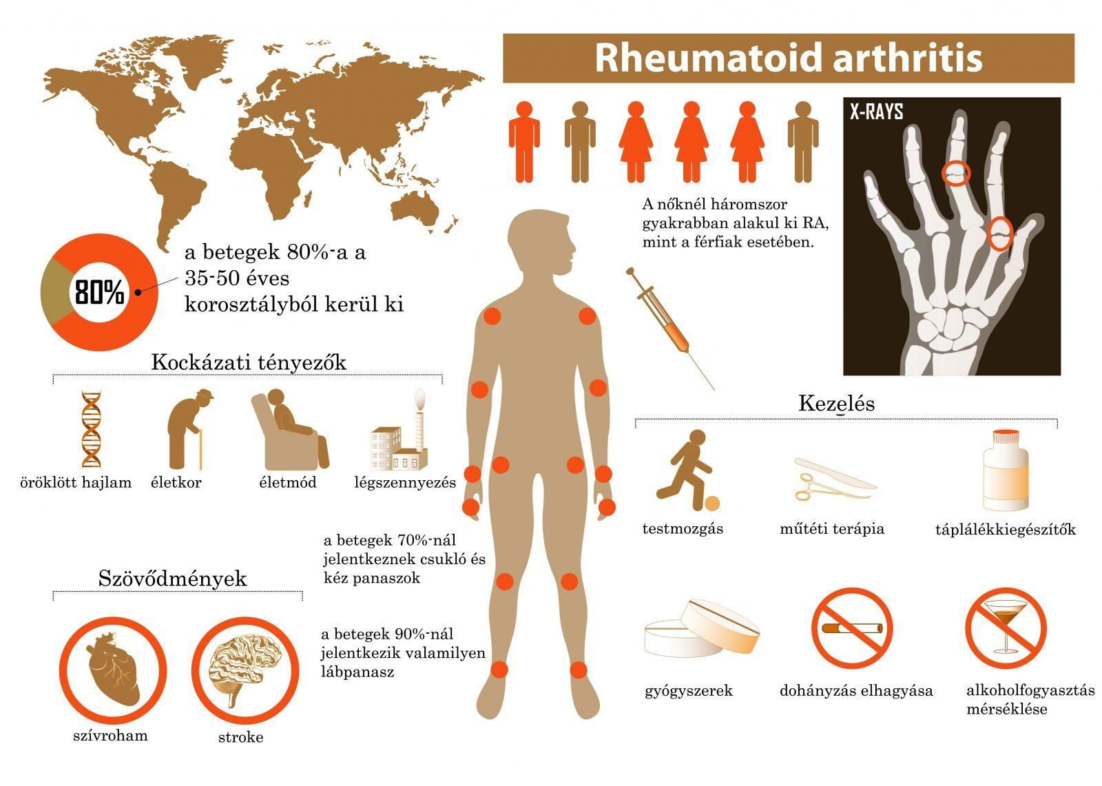 hogyan kezeljük az ízületi fájdalmakat sarkoidózissal a térd artrózisának kezelése blokáddal