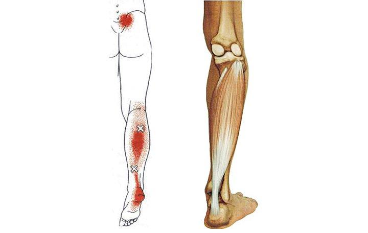 lapos lábú artrózis a térd az ízületek allergiások lehetnek