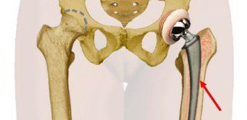 csípőízület ízületi gyulladása modern kezelés