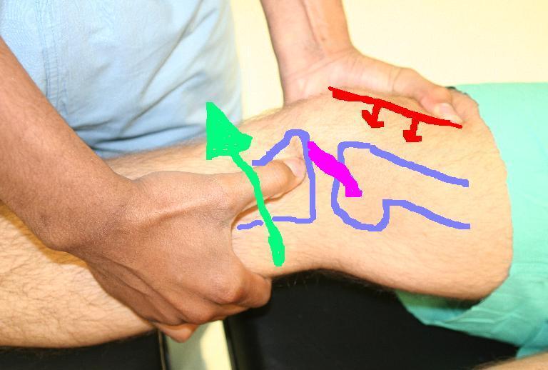 mi köze a láb ízületeinek gyulladásáig kenőcs ízületi sérülés után