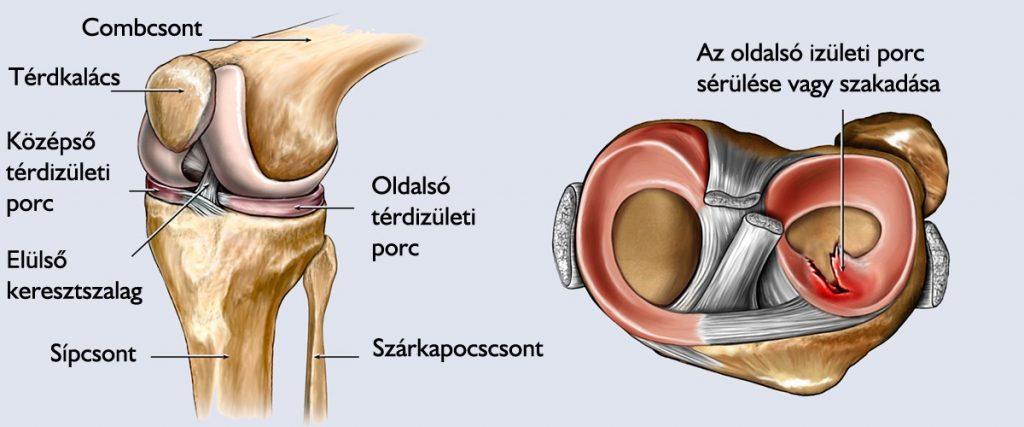 fájdalom a bal térdízület kezelésében