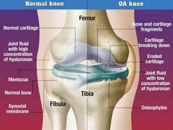 Gerinc artrózis - leírás, létrejöttének okai és gyógykezelés