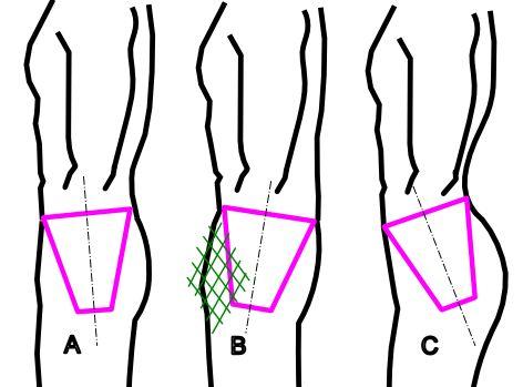 módszer térdízületi gyulladás kezelésére izomrángás és ízületi fájdalom