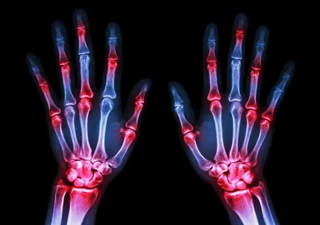 az összes ízület fájdalma összehozza a kezét a térdízület belső meniszkuszának törése