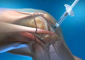 gyógyszerek artrózis kezelése
