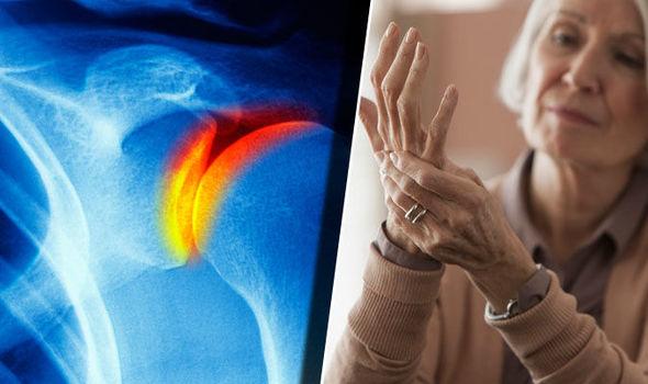 gerinc artrózis, mint kezelni ízületek duzzadt és fájó kenőcs