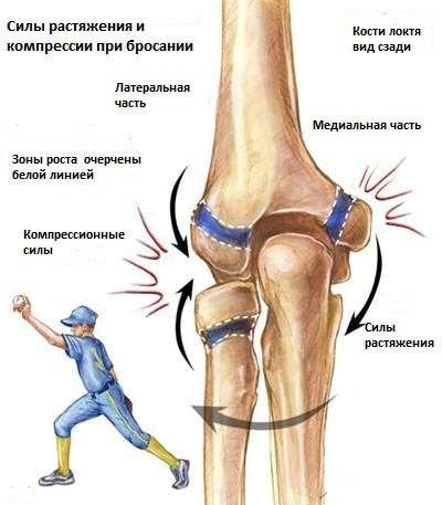 gyógyítja a nagy lábujj izületi gyulladását kondroitin gyógyszerek