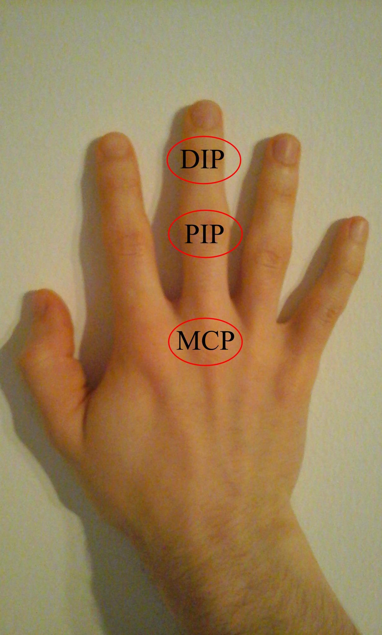 hogy néznek ki az ízületek a rheumatoid arthritisben ízületi fájdalom a gyógyuláshoz
