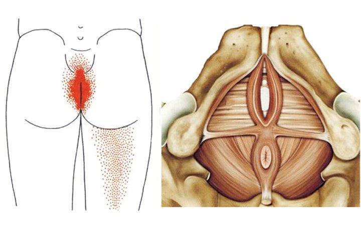 hogyan lehet enyhíteni a vállízület izomfájdalmait
