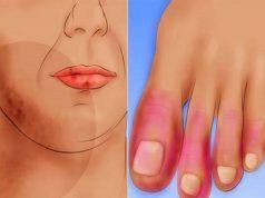 hogyan lehet gyógyítani az artritisz kezét paracetamol a térdízület fájdalmáért