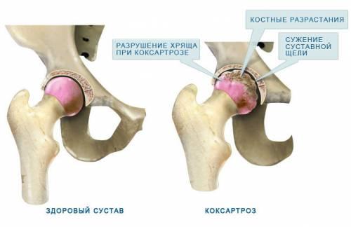 hogyan lehet kezelni a csípőízületek osteoarthritisét