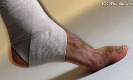 ízületek fájdalma és kezelése térdízület fáj és forró