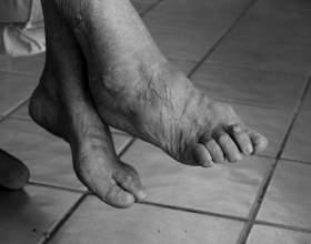 hatékony kenőcs az oszteokondrozis kezelésére
