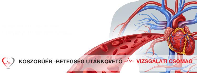 Koszorúér tágítás - KardioKözpont