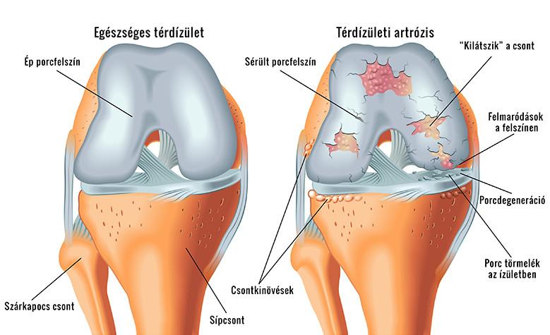krónikus fájdalom a térdben