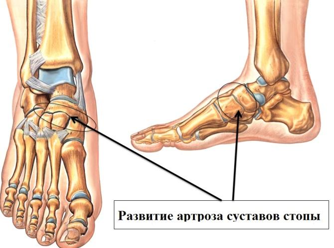 lábízületi gyulladás 3 fokos kezelés