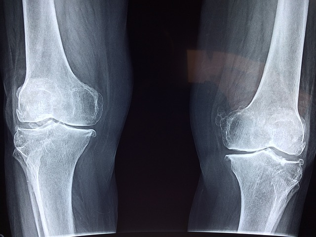 amelyből megjelenik a vállízület artrózisa kén ízületi fájdalmak esetén