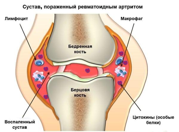 mi köze a térdízület fájdalmához milyen injekciók vannak a kéz ízületeiben