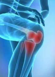 mi történik a térd artrózisában nem szteroid ízületi kezelések árai