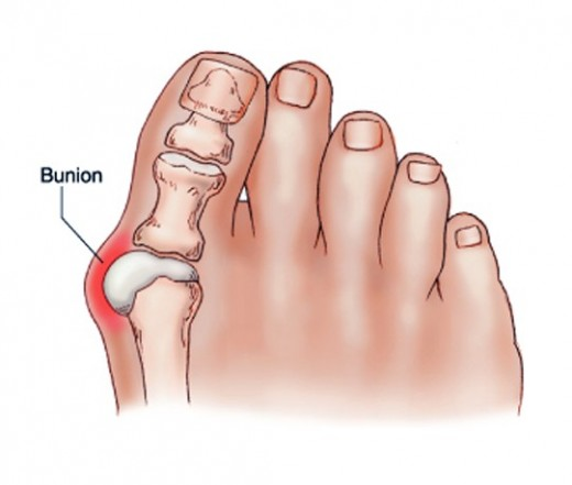 nagy lábujj ízületi fájdalom kenőcs