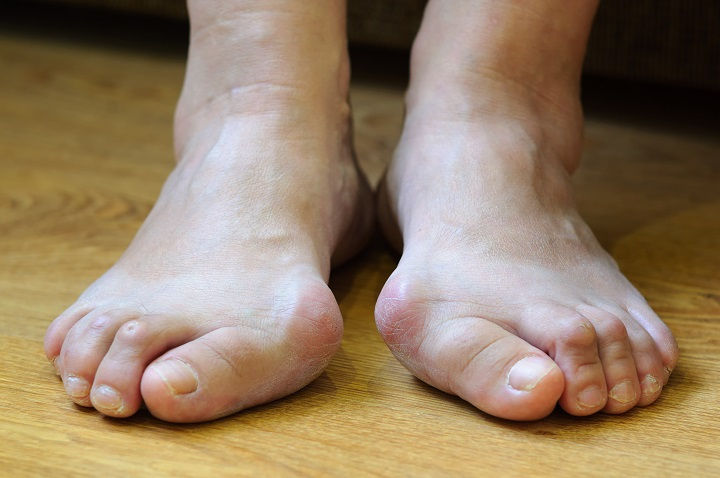 nagylábujj izületi fájdalom lóhere ízületi betegség esetén