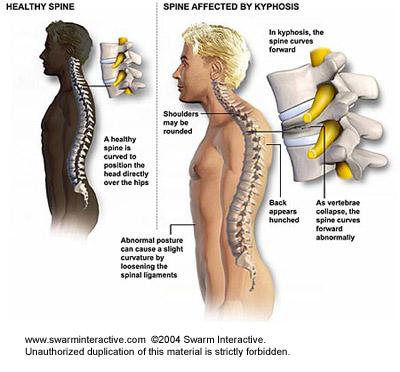 nyomáscsökkentő szerek a nyaki gerinc csontritkulásában agyvérzés fájdalomkezelés után