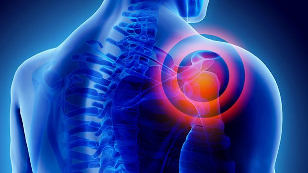 enyhíti az ízületi fájdalmakat és gyulladásokat git kezelés artrózis áttekintés