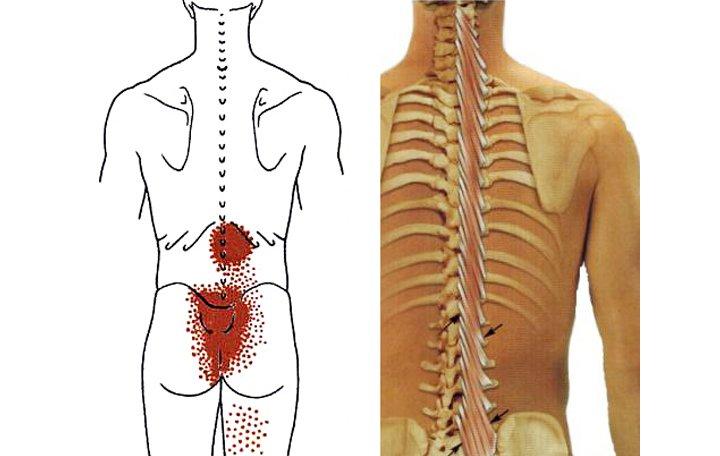 sacroiliac fájdalom miért fáj az izmok és az ízületek reggel