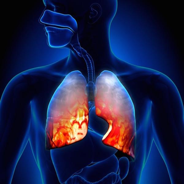 szövődmények tüdőgyulladás után az ízületeken zsinegfájdalom után a csípőízületben
