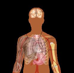 szövődmények tüdőgyulladás után az ízületeken ízületek és ízületek betegségei