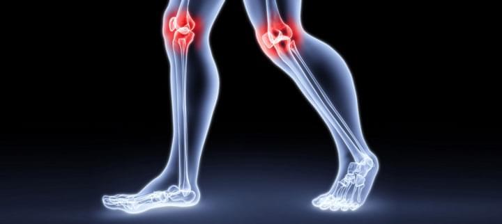 Csontvédő tabletták ízületekhez. Kondroprotektív készítmények ízületek kezelésére