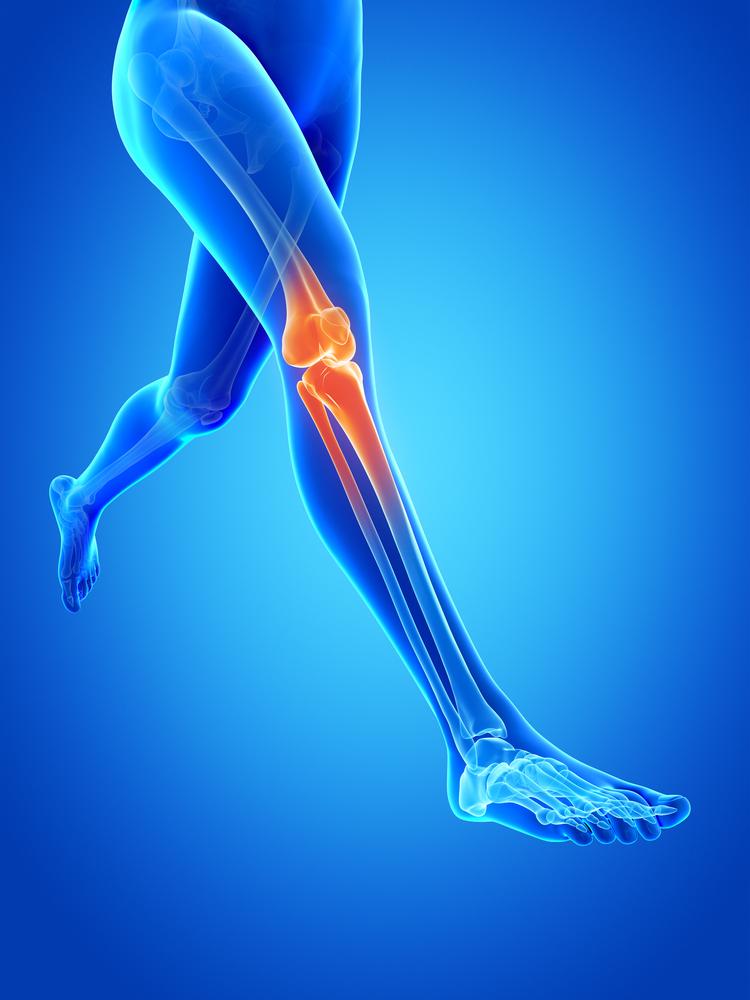 térd artroplasztika posztoperatív fájdalom