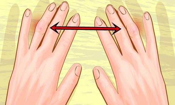 térd reumatoid artritisz kezelése
