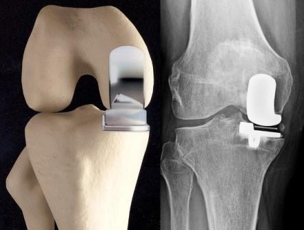térdízület gonarthrosis artrózisa gyógyszerek
