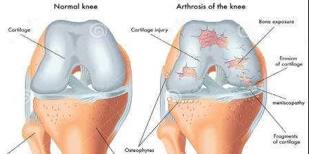 térdízületi gonarthrosis gyógyszerei lenmagolaj artrózis kezelése