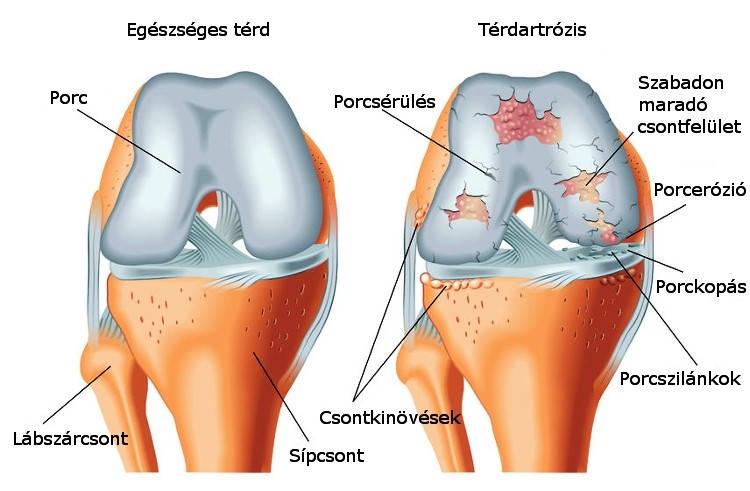 artrózis 3 fokú kezelési áttekintés