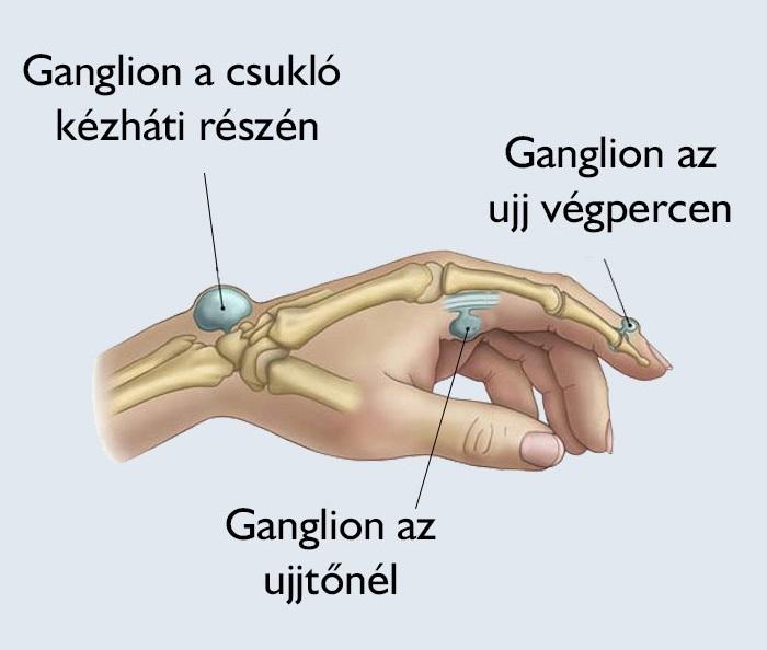 Ujj sérülések - Fájdalom kezelése - 2020