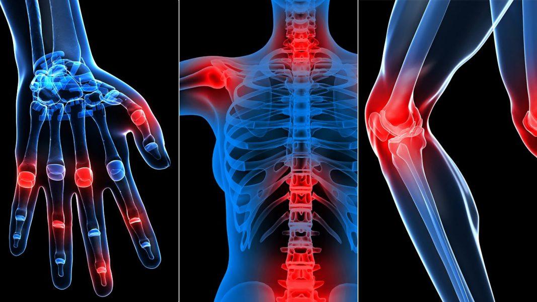 ízületi betegségek és stressz guggol a csípőízület fájdalmához