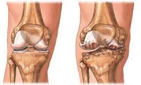 a lábízületek ízületi gyulladásának kezelése 2 fokkal gyógyítja az ízületi gyulladásokat