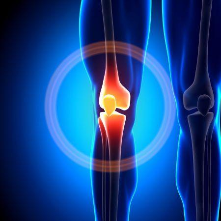 csípőízület coxarthrosis kezelésére szolgáló készítmények